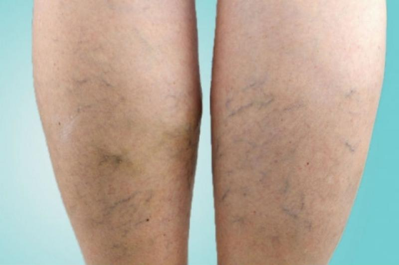 picioare de prevenire a venelor păianjen