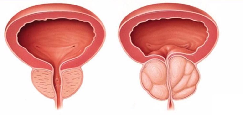 Care dovleci sunt mai buni pentru prostata