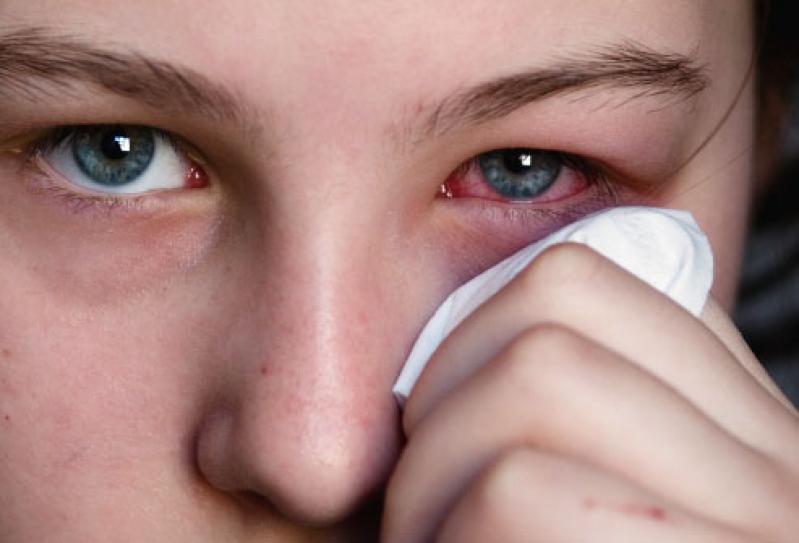 Afectiuni Ale Ochilor Cauze Si Tratament
