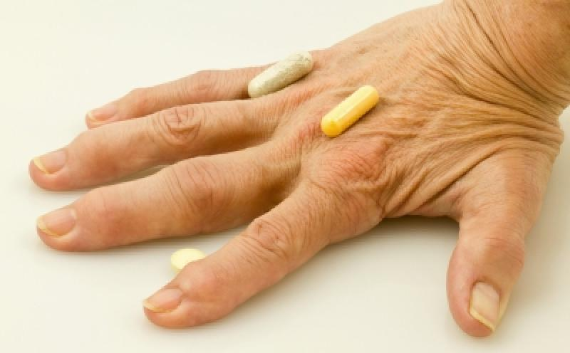 Criteriile pentru evaluarea eficacita?ii tratamentului artritei reumatoide