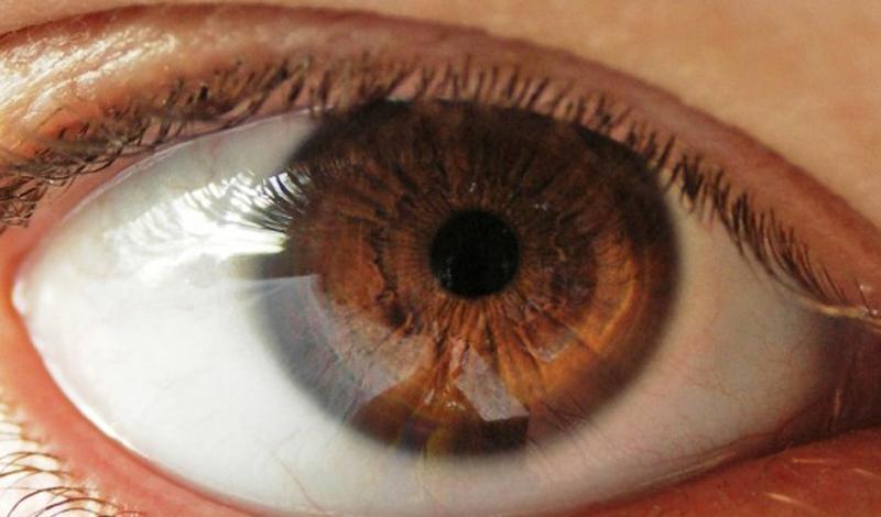 Semnul de la ochi ce te trimite urgent la doctor! Ce boală s-ar putea să ai