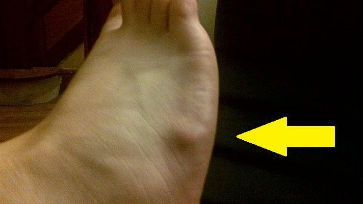 ce să faci umflături la picioare