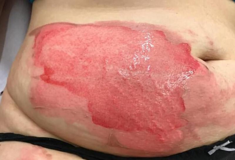 """A vrut să se relaxeze și a sfărșit cu arsuri pe corp! O femeie a trecut prin chinuri cumplite de la o sticlă cu apă: """"A sunat la o ambulanță și am intrat în șoc în timp ce venele mele se spărgeau"""""""