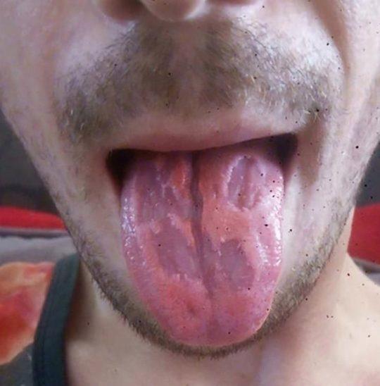 Un bărbat a băut energizante și a ajuns de urgență la spital! Ce s-a întâmplat cu limba lui