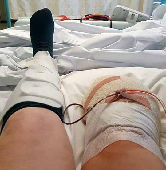 Și-a implorat medicii să îi amputeze piciorul! Drama femeii a început în momentul în care a scăpat o sticlă de parfum
