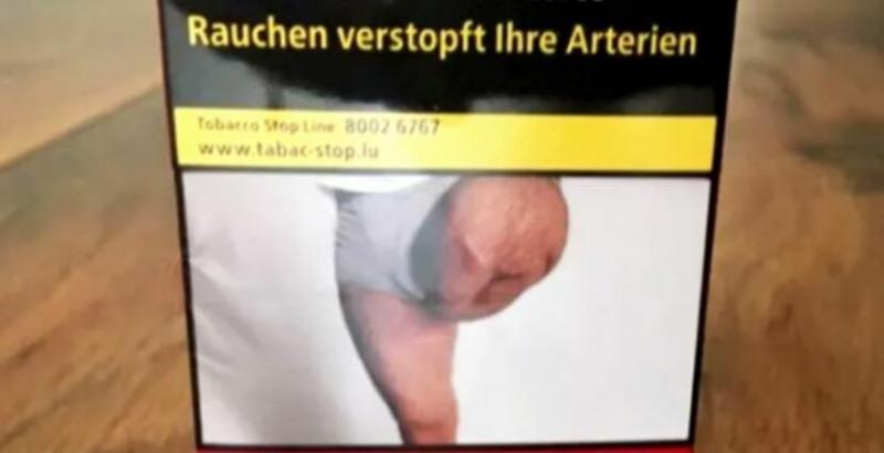 Un bărbat a rămas șocat atunci când a văzut că o poză cu piciorul lui amputat este folosită pentru pachetele de tigări fără consimțământul lui
