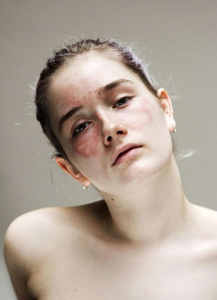 """FOTO    Un alt fel de artă? Acneea i-a distrus toată adolescența, iar acum încearcă să transforme afecțiunile pielii în """"frumos"""""""