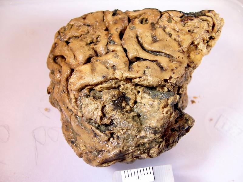 """Un creier uman a """"supraviețuit"""" 2.600 de ani! Secretul descoperit de cercetători. """"Ceva crud i s-a întâmplat acestei persoane'' – FOTO"""