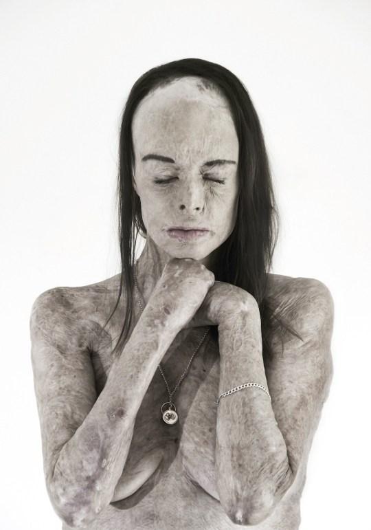 """""""Eram o regină a frumuseții. Acum, abia arăt a om"""". Desfigurată de arsuri, a avut curajul să pozeze nud: """"Vreau să arăt cum am renăscut, din flăcări"""""""