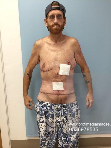 DIETA cu legume. Priviți-l! Avea 500 de kg și a slăbit peste 350 de kg mâncând! Nu a fost nici măcar o zi la sală pentru că nu a vrut. A slăbit urmând o dietă ușoară