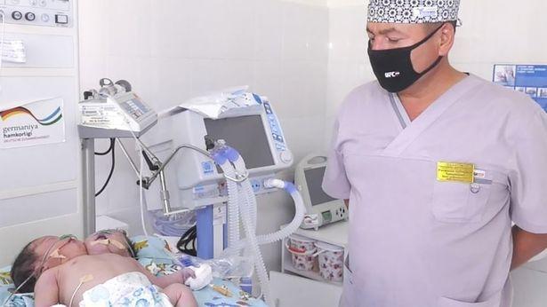 """O tânără a născut un bebeluș cu două capete. Medicii sunt uluiți: """"E ca și cum ai înghesui două persoane într-un singur corp"""""""