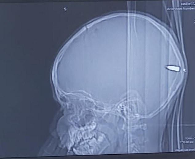 Și-au dus copilul la spital, pentru că era tot timpul somnoros! Când medicii le-au arătat o radiografie, au suferit un șoc! Foto