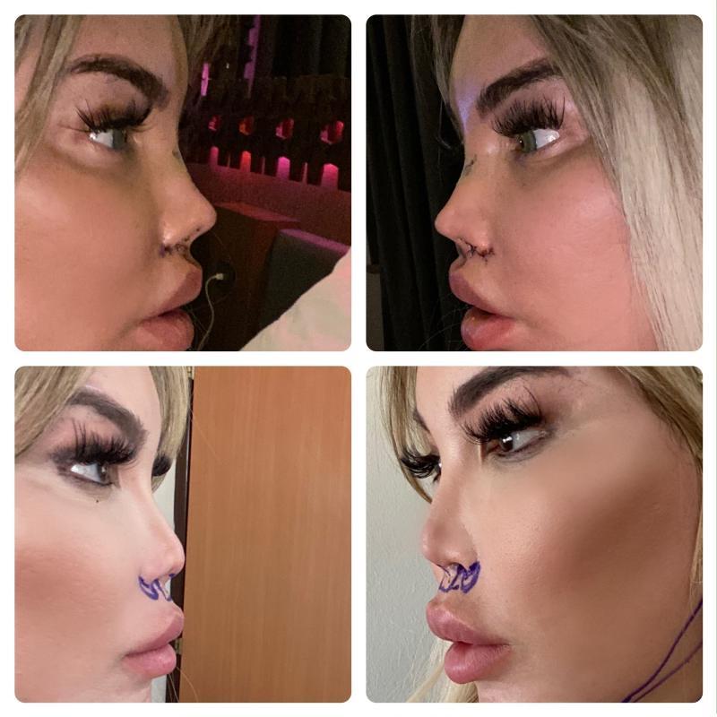 """Dependent de operații estetice. Fostul """"bărbat Ken"""" își remodelează nasul pentru a semănă și mai bine cu o păpușă Barbie"""
