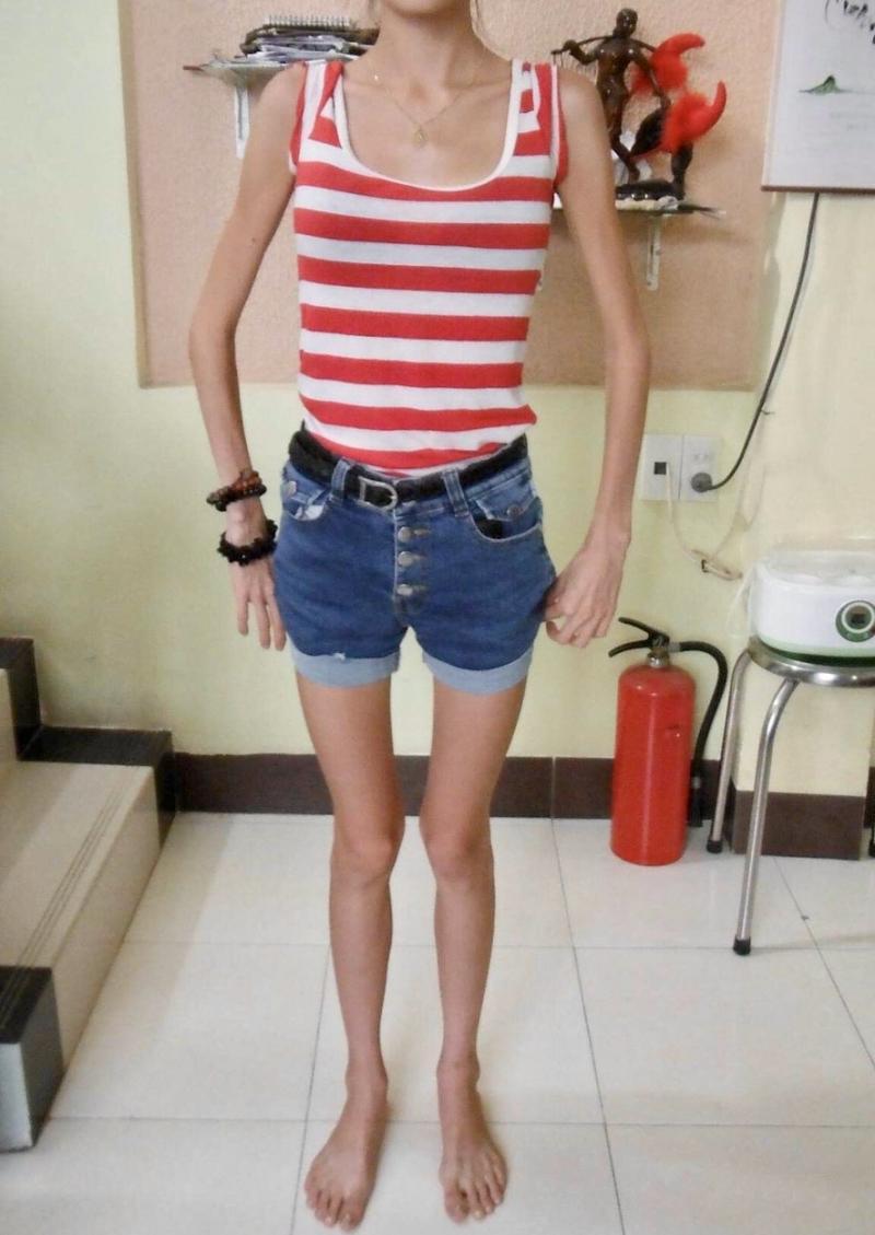 Femeia care a mâncat doar salată, roșii și mere timp de doi ani. Cum arată după ce a învins anorexia   FOTO