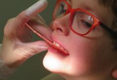 Elevii care au nevoie de aparat dentar ar putea primi bani de la Primăria Generală